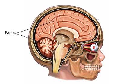 Parálisis-Cerebral